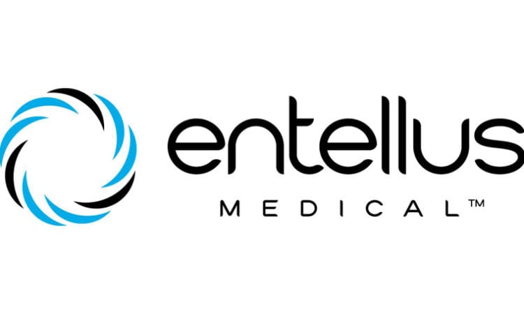 Plymouth-based Entellus Medical Selling to Stryker Corp. for $664M