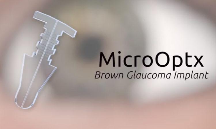 Maple Grove Medical Device Maker MicroOptx Raising $16.8 Million