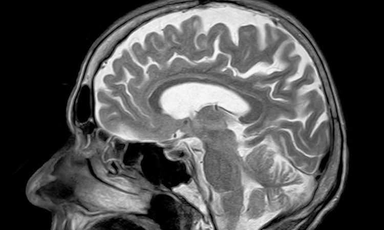 Mayo Clinic, MRI-Maker Forge Commercial Deal for New Stroke Therapies