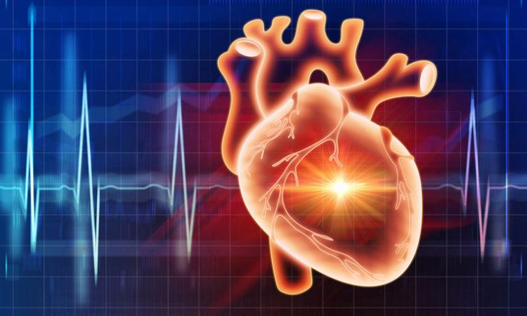 Cardionomic Nears Close of $9.6M Series B