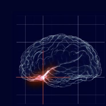 NeuroOne Raising $12M in Stock Sale